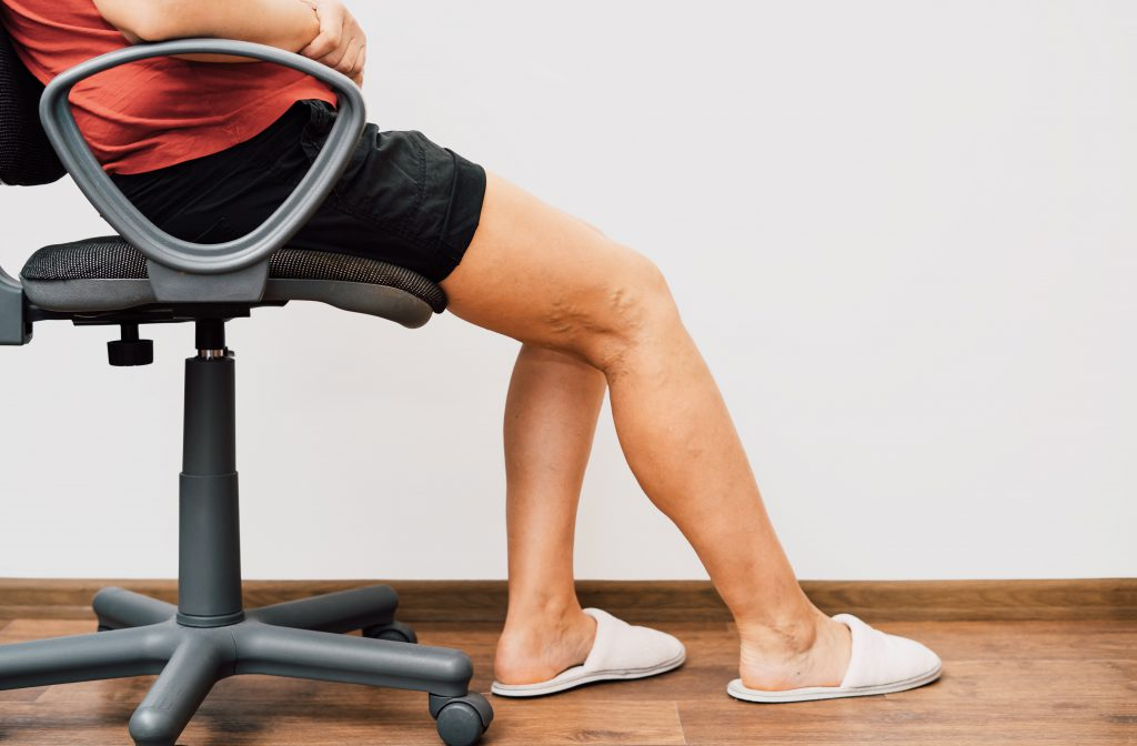 O que causa varizes nas pernas? Dr. Bruno Carvalho Vascular